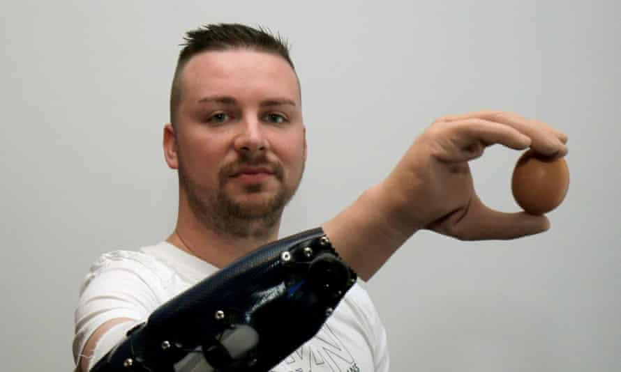 Milorad Marinkovic holds an egg with his bionic hand