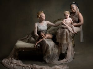 In One Boat | Persons with Albinism - White Ebony, 2019