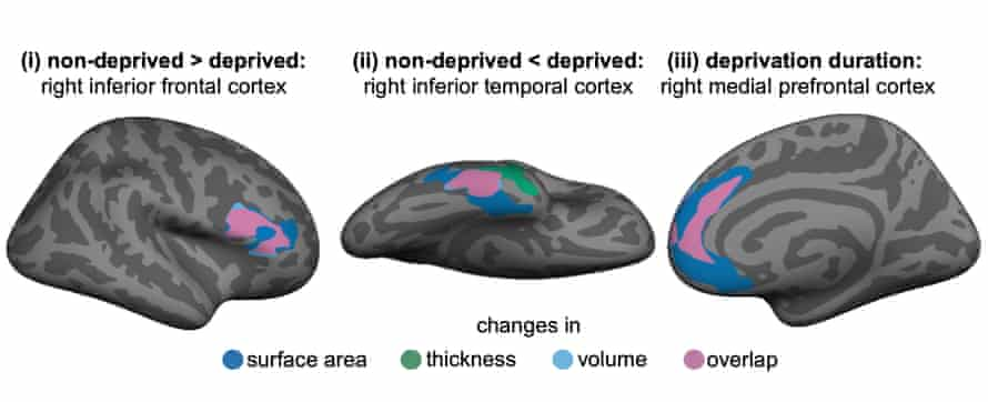 Local differences in adult brain structure associated with early deprivation.