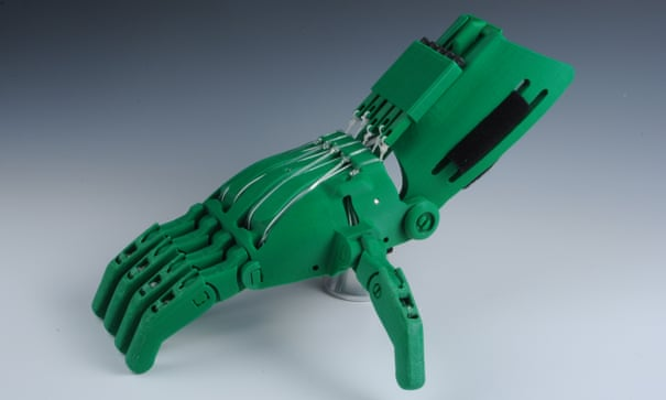 3D-printed prosthetic limbs: the next revolution in medicine ...
