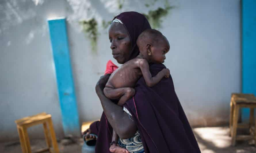 A mother holds her malnourished infant at a public health facility in Maiduguri, north-east Nigeria.