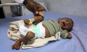 A malnourished Yemeni child receives treatment at a hospital.