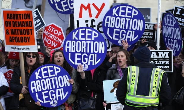 Writing a paper on abortion should not be restricted?