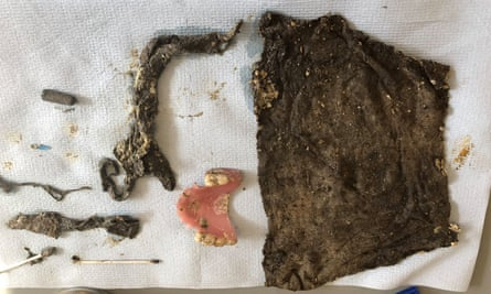 False teeth were among the things found in the fatberg.