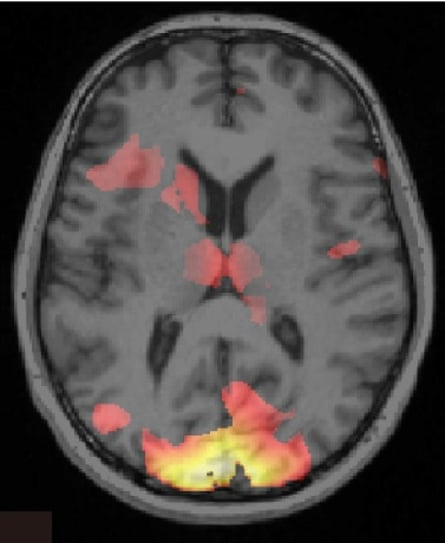 A brain image showing a pattern activity across the brain associated with one of the fear-triggering stimuli.