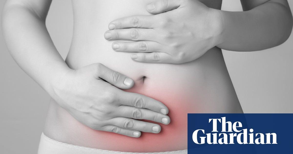 Endometriosis study 'sheds light on links to infertility