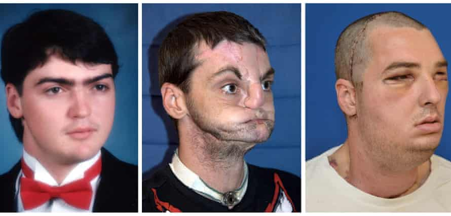 These photographs, released on 27 March 2012 by the University of Maryland medical centre, show before-and-after images of Richard Norris.