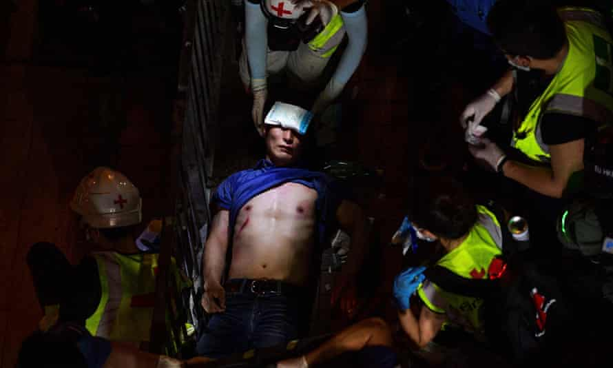 This photo of an injured man during a Hong Kong protest in 2019 by AFP photographer Nicolas Asfouri won first prize in the General News-stories category in the 2020 World Press Photo contest.