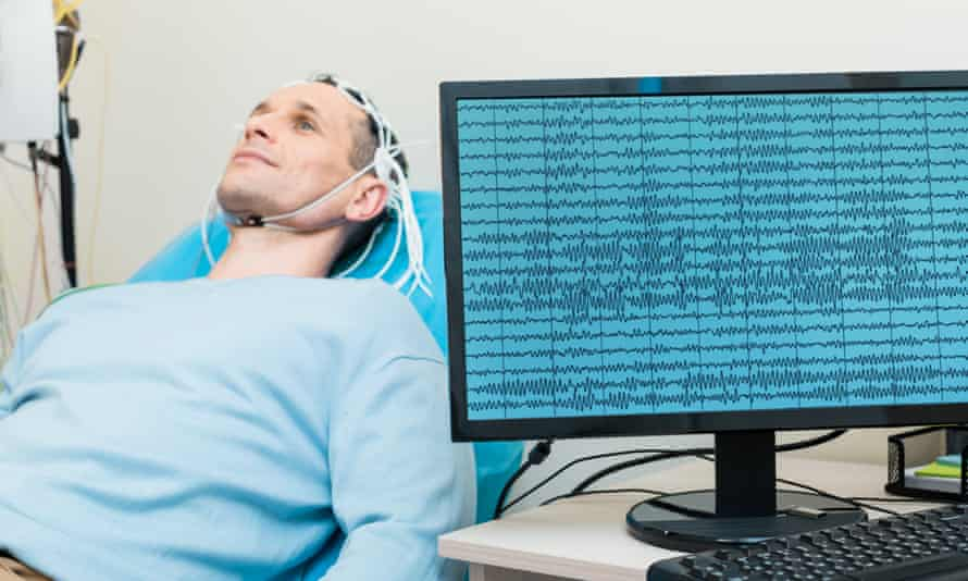 The study recording brain signals sent to trigger organ movement is considered a breakthrough.