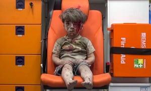 Five-year-old Omran Daqneesh sits in an ambulance