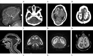 MRI images obtained in the case of an 18-year-old woman with confirmed Zika virus infection in Brazil.