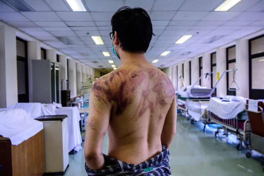Calvin So, 23, a resident of the rural town of Yuen Long, shows his wounds and bruises after he was assaulted on his way home by gangs of men who set upon demonstrators.