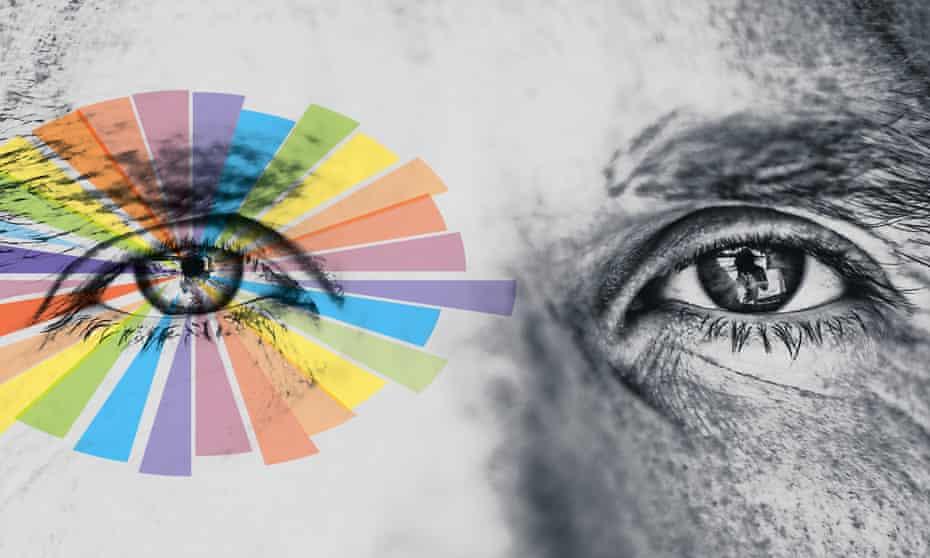 Eyes Migraine