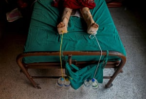 An injured girl in Kathmandu, Nepal