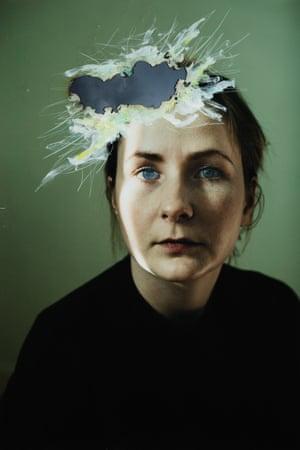 woman looking sad, big blotch on her head