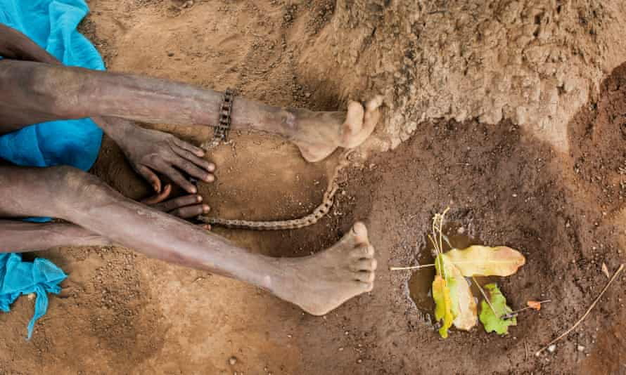 Chains on a woman in norhern Ghana who has schizophrenia.
