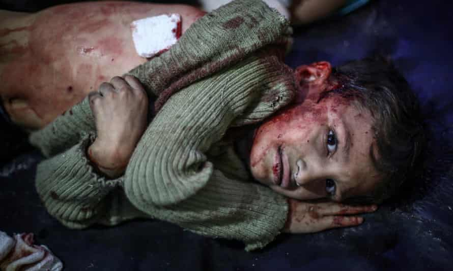 A young Syrian receives first aid after what local activists say was an airstrike by pro-Assad loyalists on Douma.