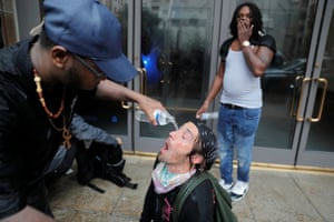 A man has his eyes doused with water after being pepper sprayed