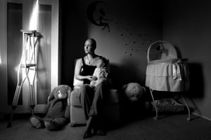 Sylvia Liber's photo of Emma Drummond, an 18-year-old mother diagnosed recently with a rare form of bone cancer.