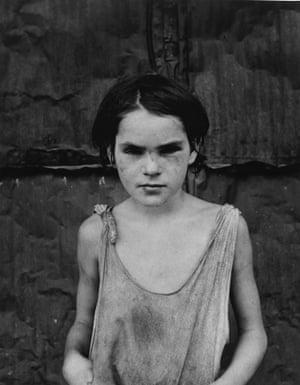 Dorothea Lange, Damaged Child, Shacktown, Elm Grove, Oklahoma 1936