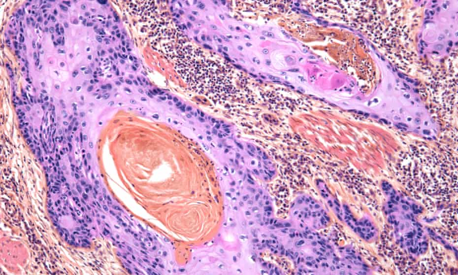 Squamous carcinoma of the skin