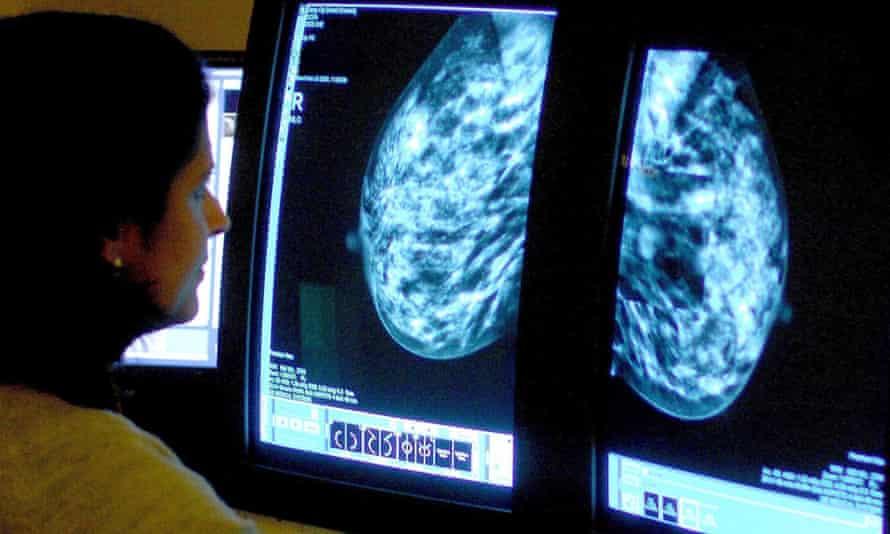 Consultant examines mammogram