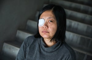 Veby Mega Indah was hit in the eye by a rubber bullet while covering anti-government protests in Wan Chai.