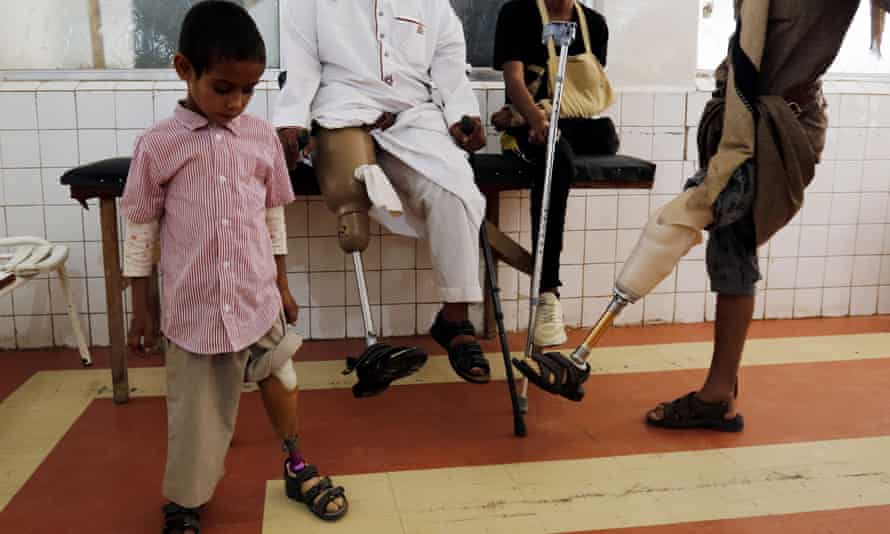 Victims of Yemen's war try out prosthetic limbs at a rehabilitation centre in Sanaa.