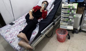 A civilian breathes through an oxygen mask in an Aleppo hospital after what medics described as gas cannisters, believed to contain chlorine, were dropped alongside barrel bombs on the city on 11 August