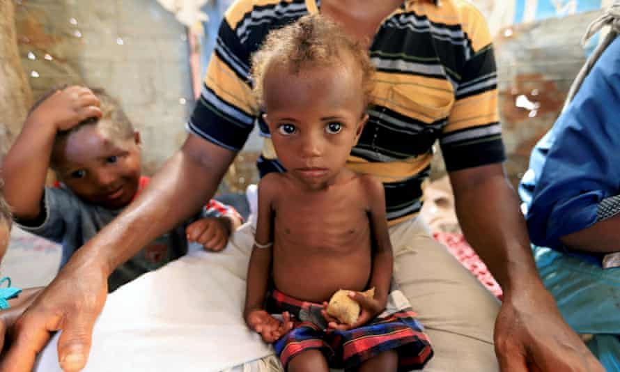 A malnourished girl sits on her father's lap in a shanty town in Hodeidah, Yemen.