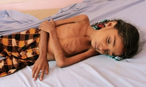 A Yemeni child suffering from malnutrition