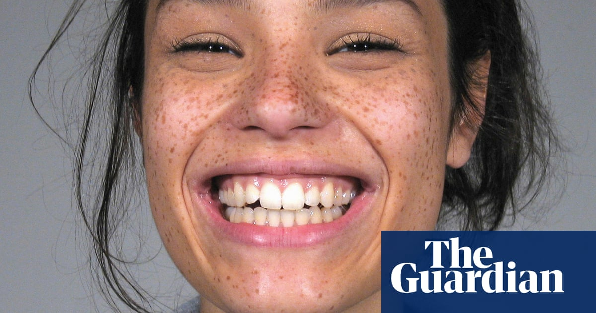 Forget flossing: four alternative ways to keep your teeth