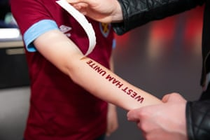 The tattoo reads 'West Ham Unite' because the letter D failed to transfer.