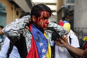 A wounded protester