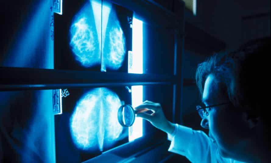 A doctor analysing a mammogram.
