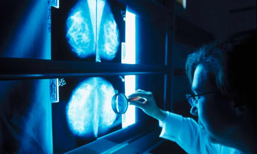 A doctor looks at mammograms