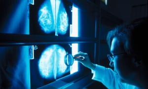 A doctor examines mammograms