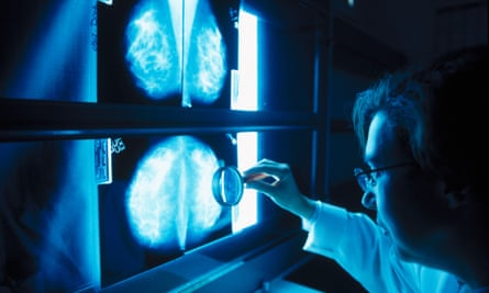A doctor analyses a mammogram