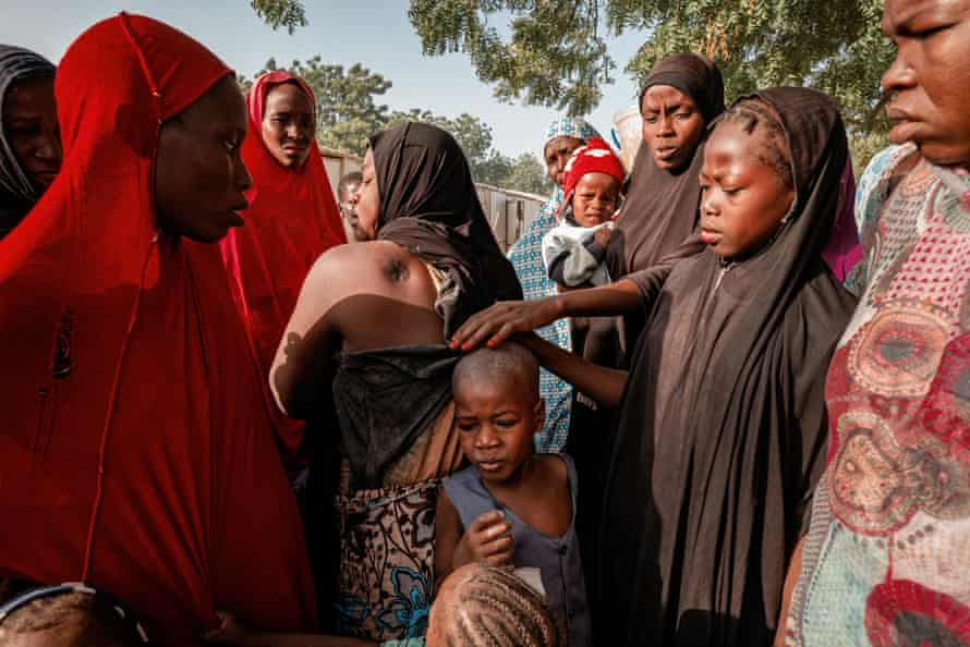 Zara Abubakar, who lives in an unofficial IDP settlement in Maiduguri, shows the injuries she sustained in a landmine explosion.