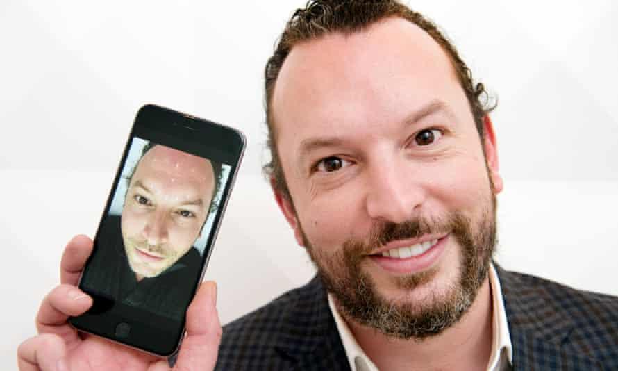 Dan Smith Botox