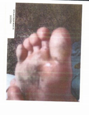 Image depicts detainee's foot injury. No further context was provided.