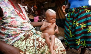 A six-month-old baby whose mother died in childbirth is cared for by his grandmother in Freetown, Sierra Leone