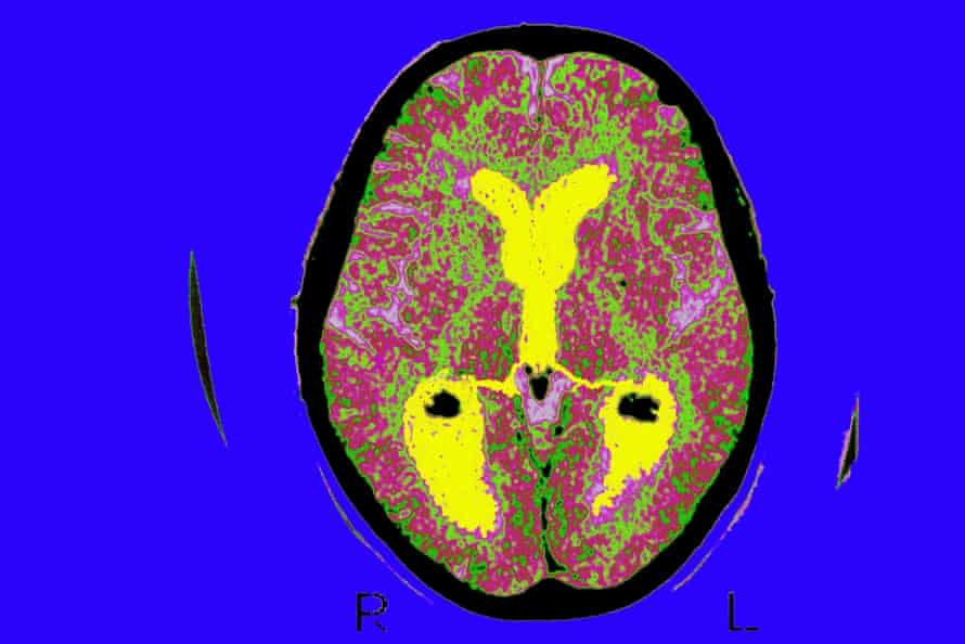 A brain scan of a patient with Alzheimer's.