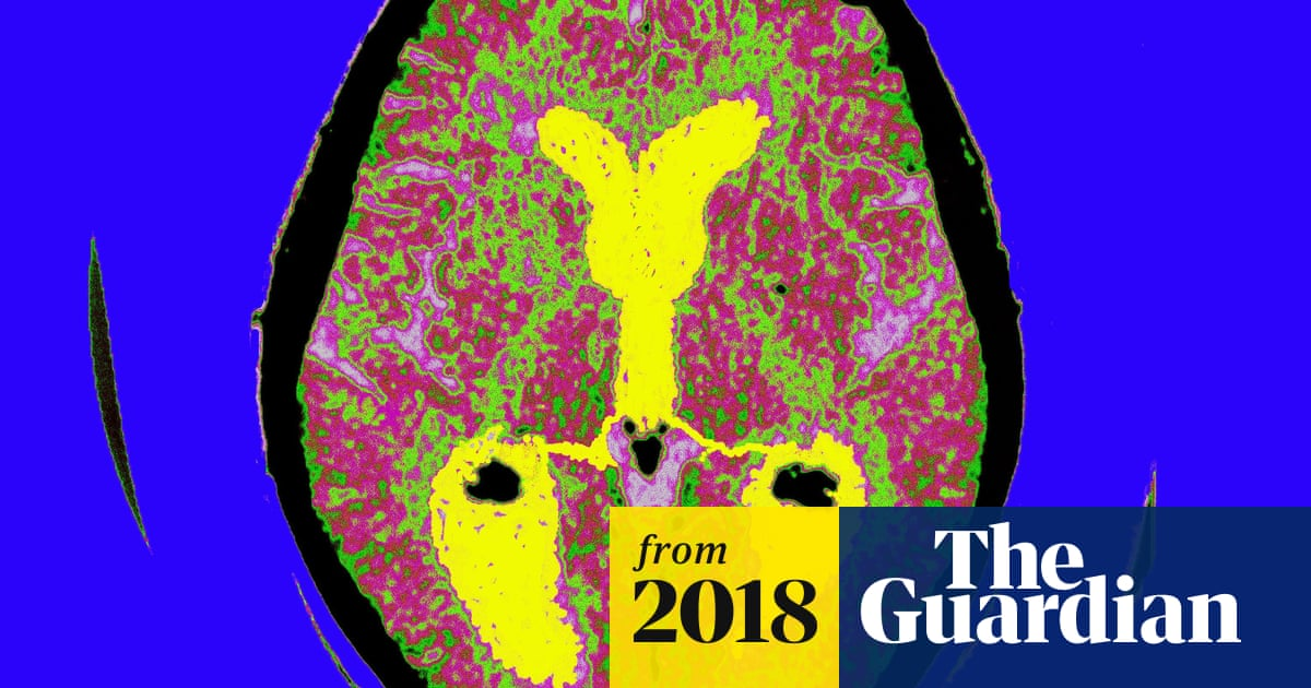 Alzheimer's link to herpes virus in brain, say scientists | Society