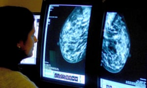 A breast cancer consultant analysing a mammogram.