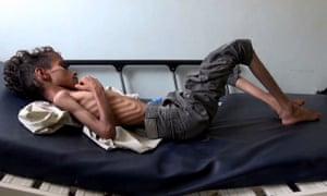 Ten-year-old Ghazi Saleh, who weighs 8kg.