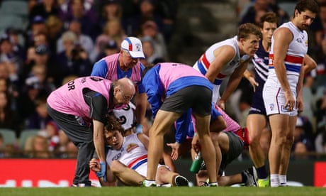 Link between concussion and brain damage to ensure AFL