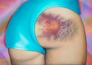 I Got a Really Beautiful Bruise on My Bum, Do You Want To See a Pic It Has 12 Colours And Is the Size of My Head!, 2015. All artwork: Riikka Hyvönen