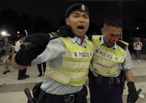 A Hong Kong police officer with blood flowing down his face is assisted by a colleague