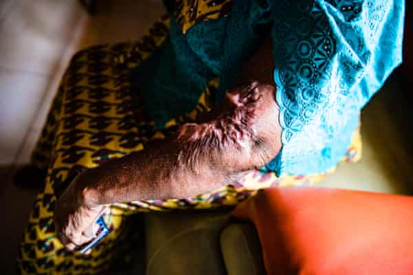 Gloria Wanam almost died when some locally produced kerosene she had bought exploded in her kitchen.